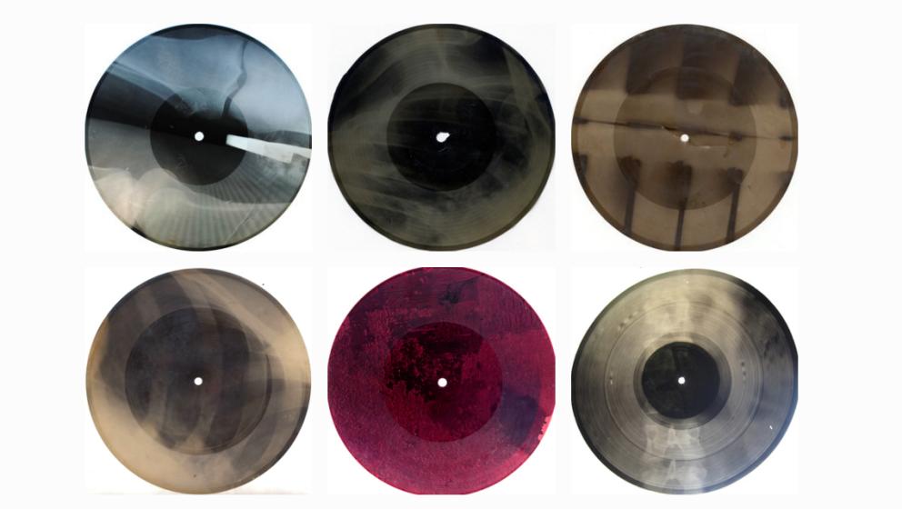 Auf diesen Schallplatten aus alten Röntgenbildern kann man noch die Knochen der Patienten erkennen.