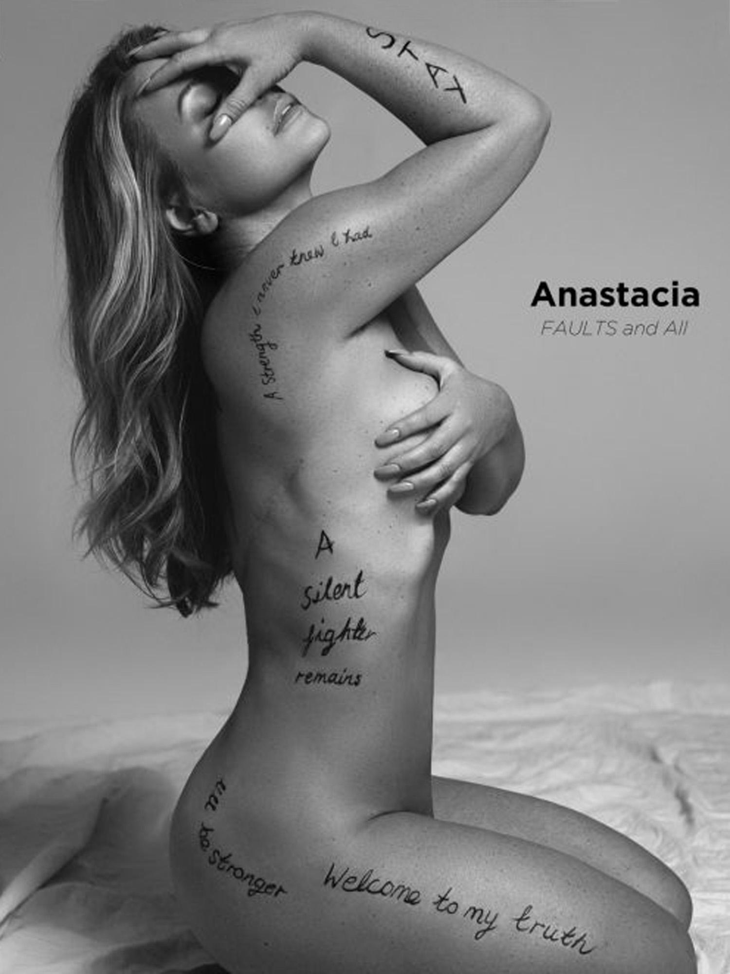 anastacia-brustkrebs-narben-amputation-bildschirmfoto-2016-11-23-um-12-34-23-kopie